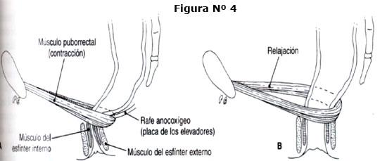Neuropatía del nervio pudendo post parto vaginal