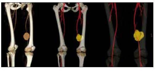 Pseudoaneurisma crónico de la arteria femoral izquierda secundaria a ...