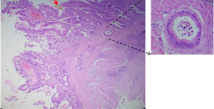cancer vesicula biliar histologia)