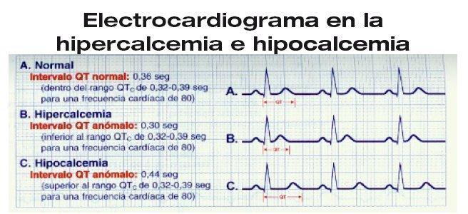 Resultado de imagen para signos ecg hipercalcemia